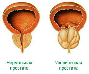 лечение простатита в магнитогорске